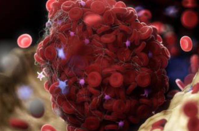 Collegamento a Un nuovo protocollo sperimentale per capire i meccanismi delle trombosi